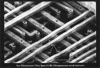 Microprocessor metal structures